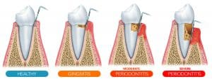 Stages of Gum Disease in Silverdale, WA