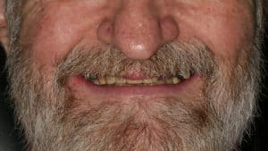 Before Dental Implants in Silverdale, WA