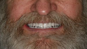 After Dental Implants in Silverdale, WA