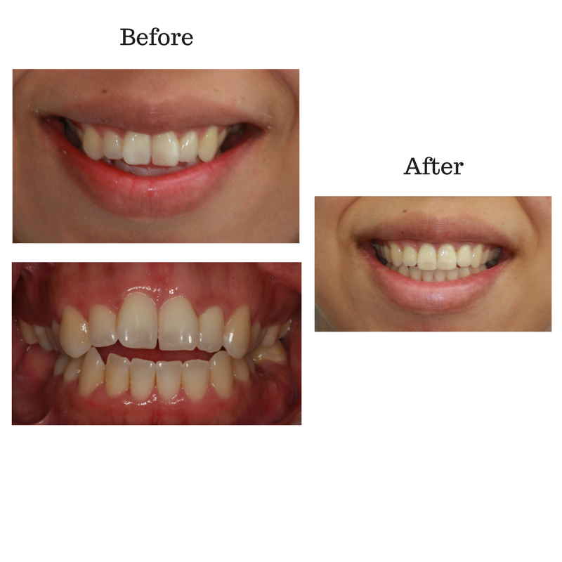 before-and-after-invisalign-1