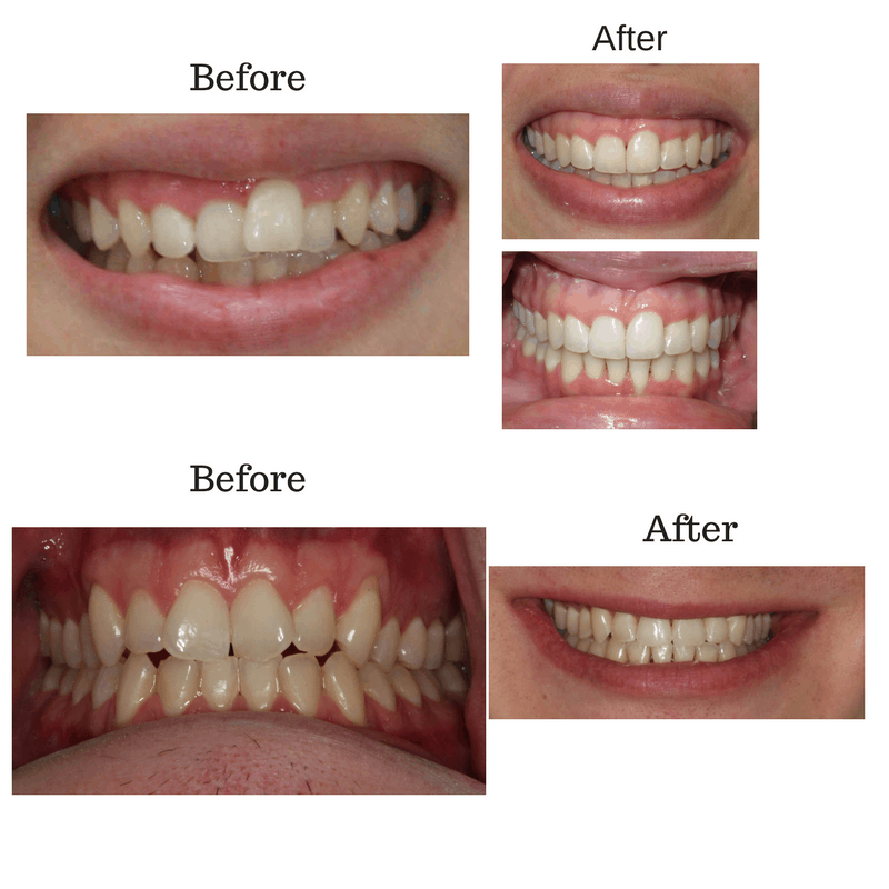 before-and-after-invisalign