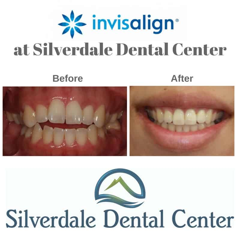 do-you-want-to-know-more-about-invisalign