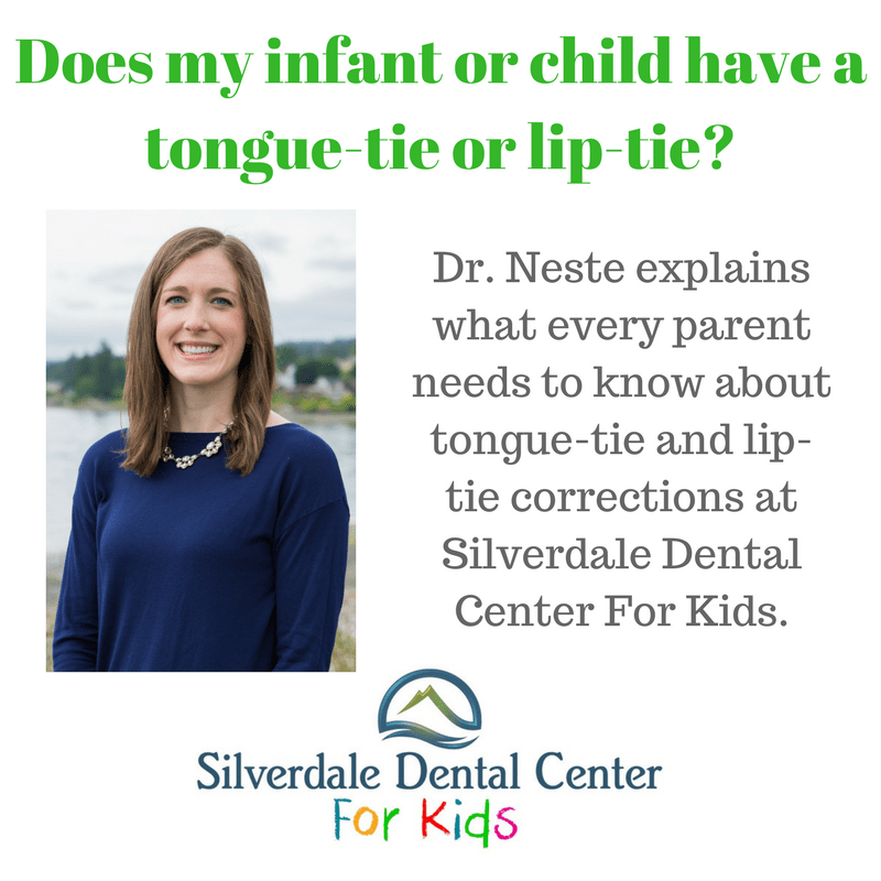 does-my-infant-or-child-have-a-tongue-tie-or-lip-tie