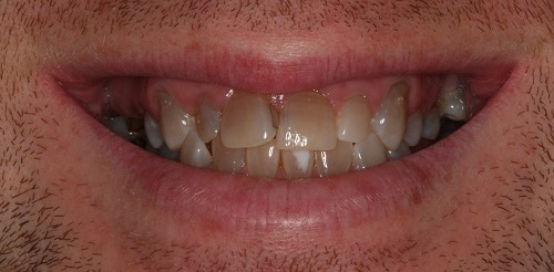 Before - Silverdale Dental Center - Silverdale, WA